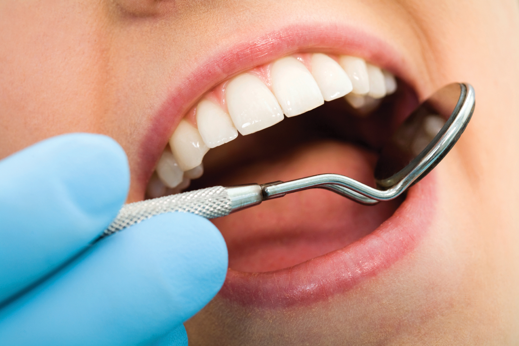 implants dentaires en Tunsiie avec ChirurgiePro