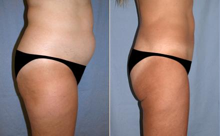 liposuccion en Tunisie - ChirurgiePro