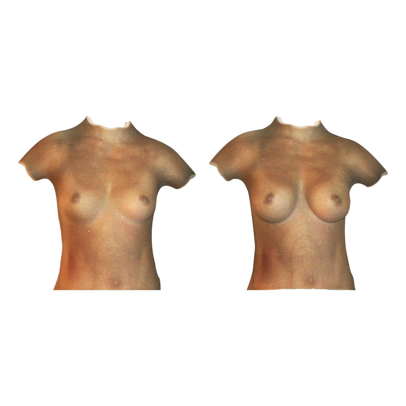 simulation 3D augmentation mammaire