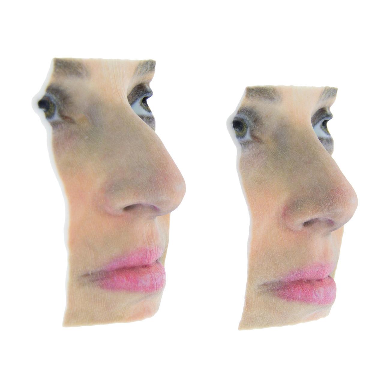 rhinoplastie 3D