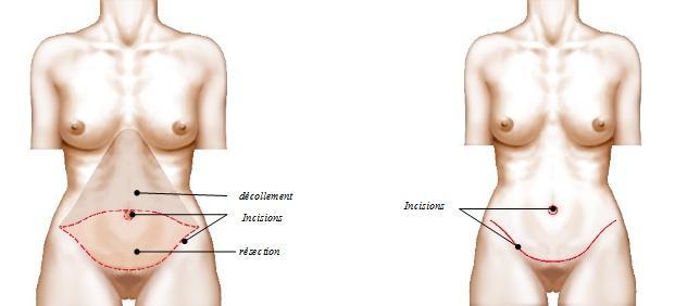 Abdominoplastie complète
