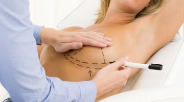 chirurgie mammaire - chirurgie esthetique tunisie